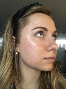 Mikaela Lauren Wellness Skin Journey 2020