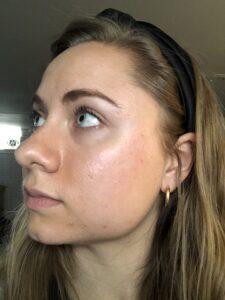 Mikaela Lauren Wellness Skin Journey 2020 Clear