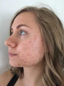 Mikaela Lauren Wellness Skin Journey Acne 2017