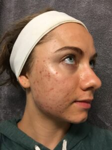 Mikaela Lauren Wellness Skin Journey 2