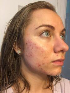 Mikaela Lauren Wellness Acne 2