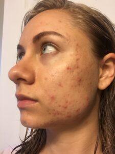 Mikaela Lauren Wellness Skin Journey 1